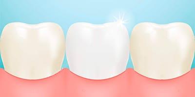 Tratamiento de carrilas dentales para la tinción, fractura y tamaño de los dientes